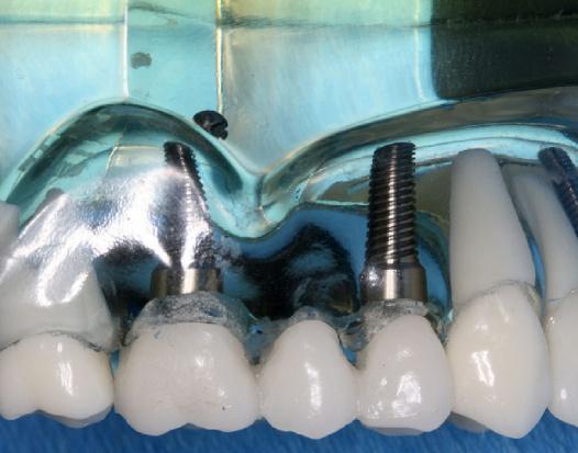 Uwaga, pojawią się implanty made in India