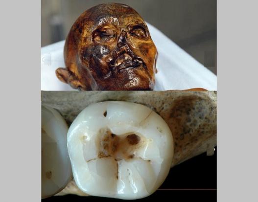 Zęby leczone ostrymi kamieniami