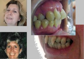 125 tys. zł za zęby wampira