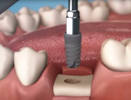 MIS Implants: dożywotnia gwarancja na wszystkie implanty