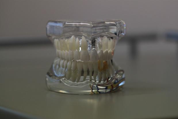Bisfenol A, powszechnie obecny w stomatologii, znowu na cenzurowanym