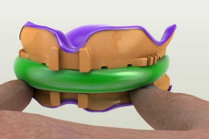 FDA aprobuje podbudowy koron z drukarek 3D