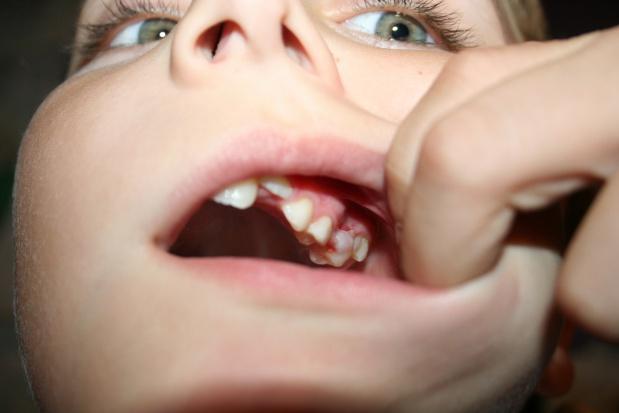 PES ze stomatologii dziecięcej: w zasadzie pogrom