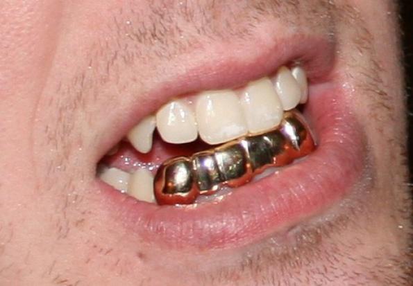 Grillz: złoty interes na złotych zębach