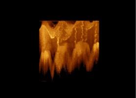Optyczna koherentna tomografia w diagnostyce nowotworów jamy ustnej