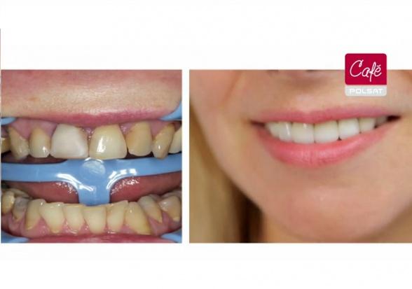 Co robią dentyści w