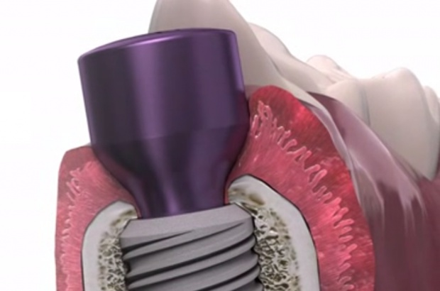 Global D: implanty w systemie In-Kone