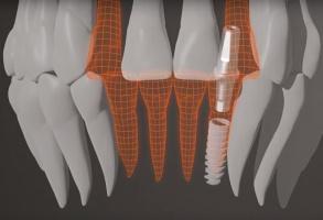 Global D - część Grupy Menix: 40 lat doświadczenia w implantologii