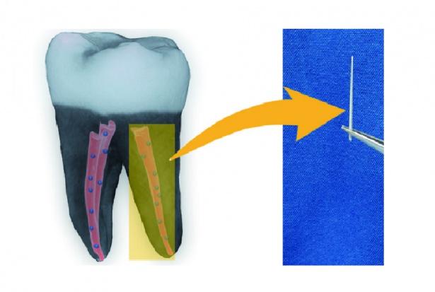 Nanodiamenty dają mocny impuls w leczeniu kanałowym