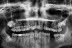 Promieniowanie jonizujące w gabinecie dentystycznym: czas rozstrzygnięć