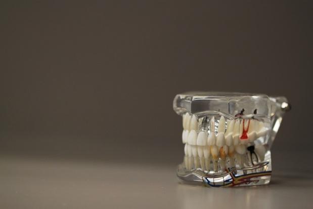 Żuchwa 3D ratuje chłopcu twarz przed deformacją