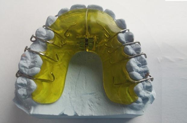 Wykluczeni przez NFZ z leczenia ortodontycznego
