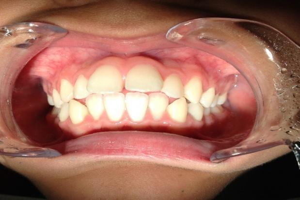 Kształcenie specjalizacyjne lekarzy dentystów w kryzysie, co robić?