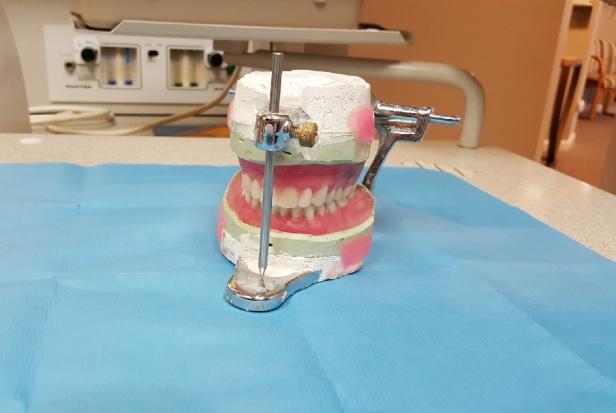 """""""Czasokres"""" wykonania protezy zębowej"""