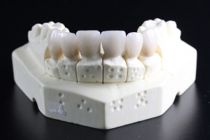 Fluor w walce z demineralizacją zębiny i szkliwa