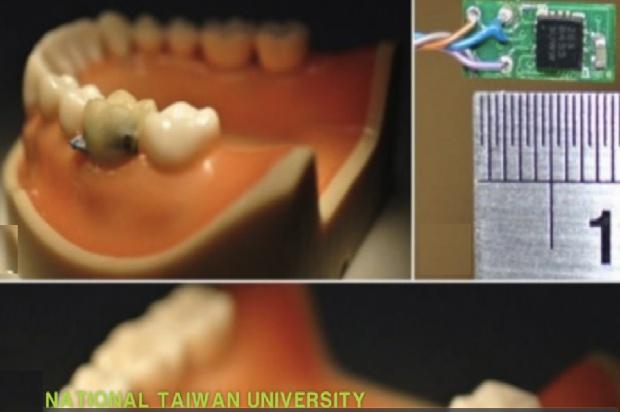 Zęby na sensorach