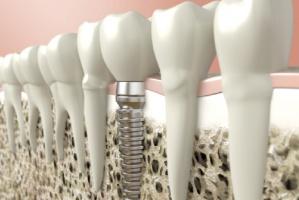 Implanty a peri-implantitis: jaka korelacja?