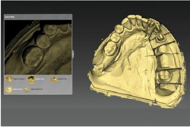 CAD/CAM: rusza cykl bezpłatnych szkoleń online dla techników dentystycznych.