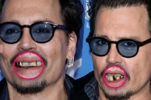Johny Depp nie chodzi do dentysty?