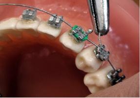 Podlaski OW NFZ zainteresowany jest zakupem świadczeń w zakresie ortodoncji
