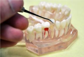 Dentysto, uważaj na bisfenol A w materiałach stomatologicznych
