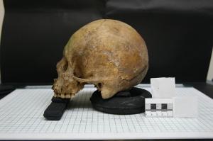 Zawód dentysty sprzed 10 tys. lat: rozpałka do ognia - wiertłem stomatologicznym