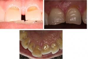 European Federation of Conservative Dentistry o erozyjnym ścieraniu zębów
