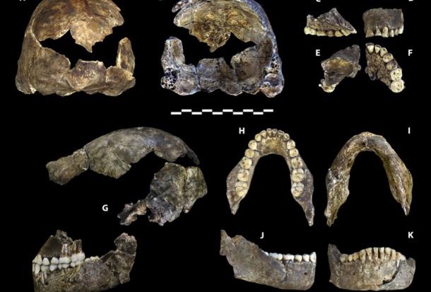 Neandertalczyk z wyjątkowo zdrowymi zębami