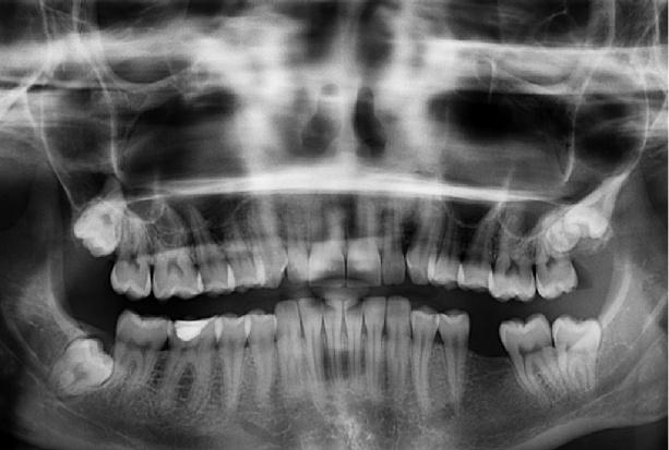 Zdjęcia radiologiczne w leczeniu stomatologicznym dzieci i młodzieży