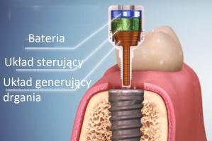 Implanty: impulsy elektromagnetyczne wzmacniają osteointegrację