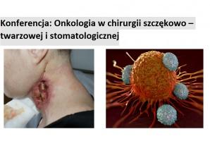 Onkologia w chirurgii szczękowo – twarzowej i stomatologicznej