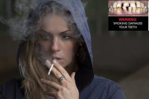 Zdjęcia zepsutych zębów mają odstraszać od palenia papierosów