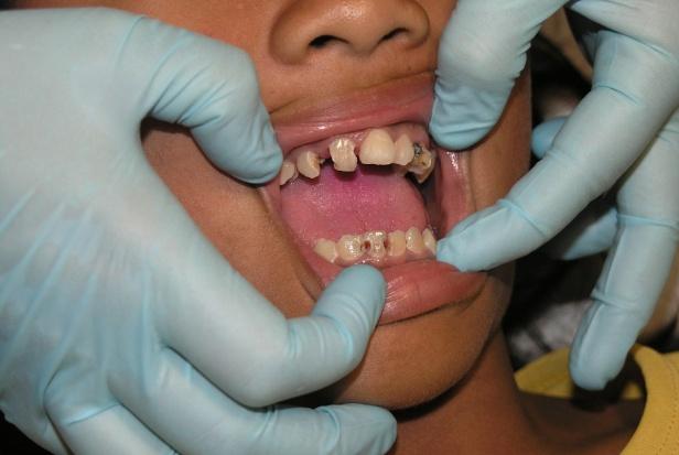 Zepsute zęby uniemożliwiają karierę!