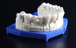 Co drugi Polak po 40-tce nosi protezy zębów