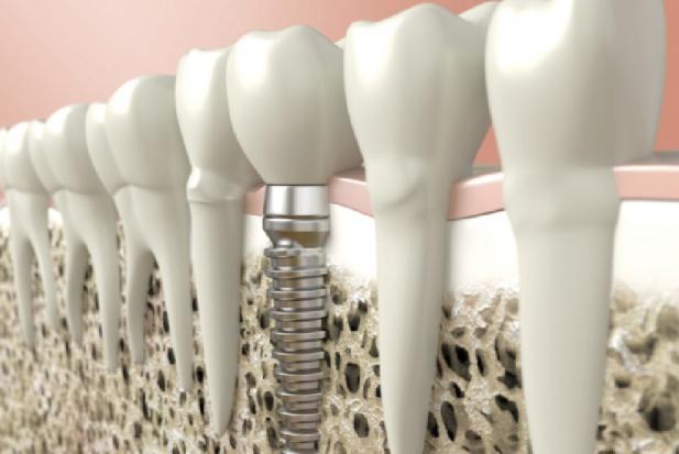 Rynek implantów stomatologicznych szybko rośnie