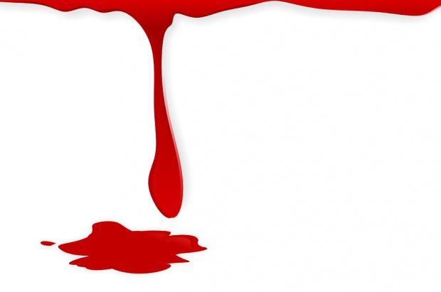 Morderca dentystów zdemaskowany dzięki testom DNA