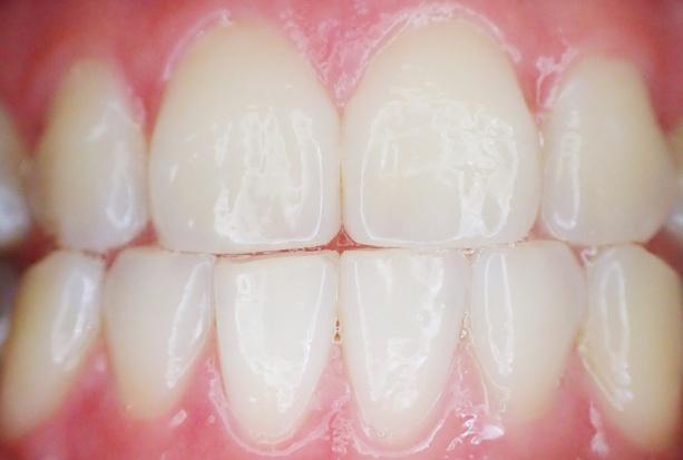 Historia zapisana w zębinie