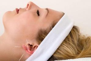 Akupunktura narzędziem stomatologa