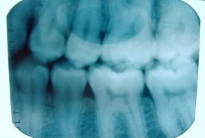 Radiolodzy niedouczeni pouczają dentystów