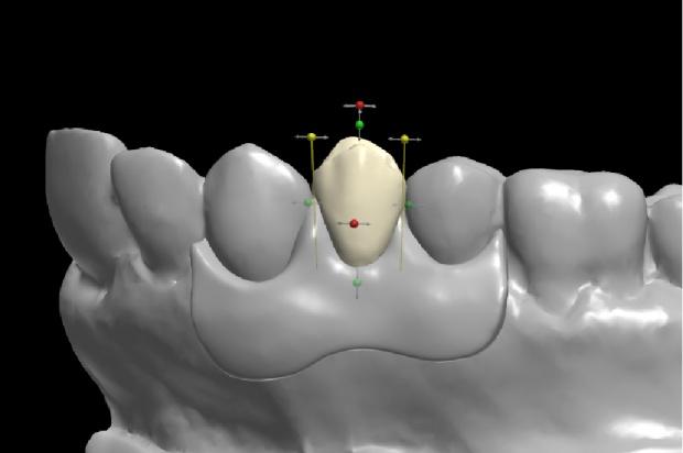 Przełom w drukarkach 3D dla stomatologii?