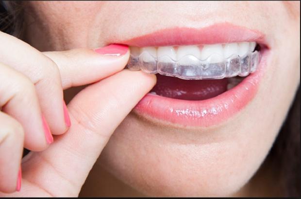 Clear aligners kontra stały aparat ortodontyczny