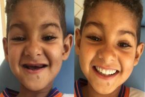 Dziecko w wieku trzech lat  z protezą zębów