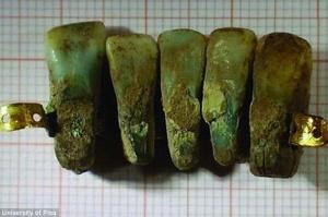 Włochy: Proteza stomatologiczna sprzed 700 lat