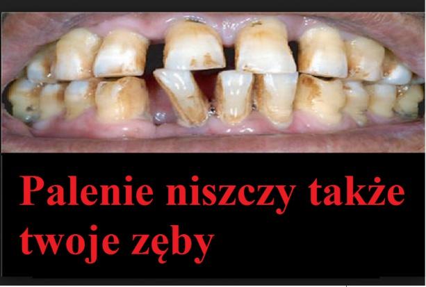 Na palaczy wyszczerzać będą zepsute zęby