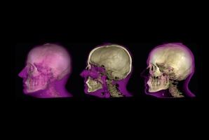 Radiologia: zwrot na inwestycji, magiczne słowo?