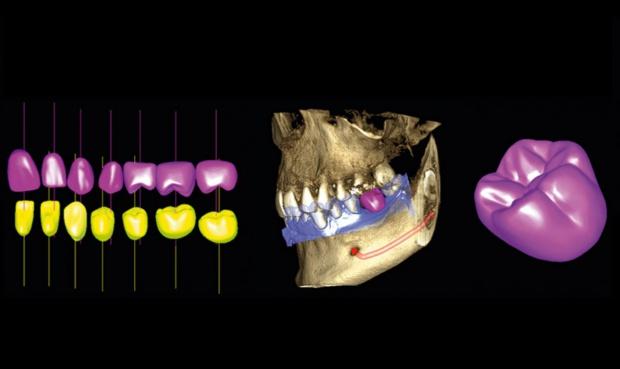 Radiologia: jakość sprzętu, czyli właściwie co?