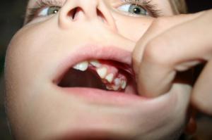 W Skierniewicach wyleczyli 185 zębów u dzieci