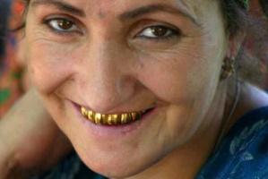 Zęby mówią o nas