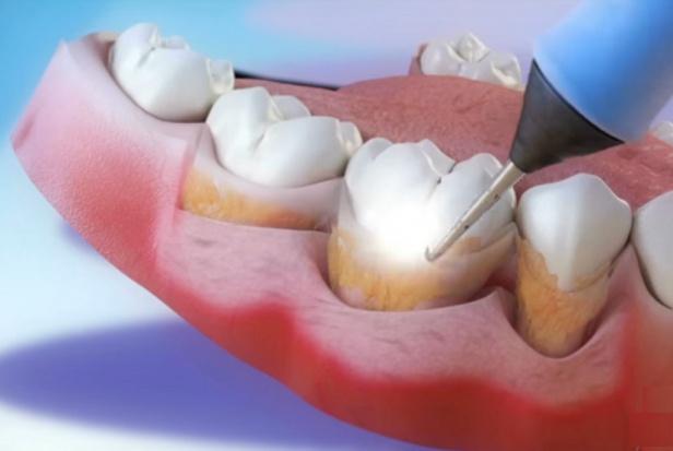Skaling plus implanty tytanowe - źródłem problemów