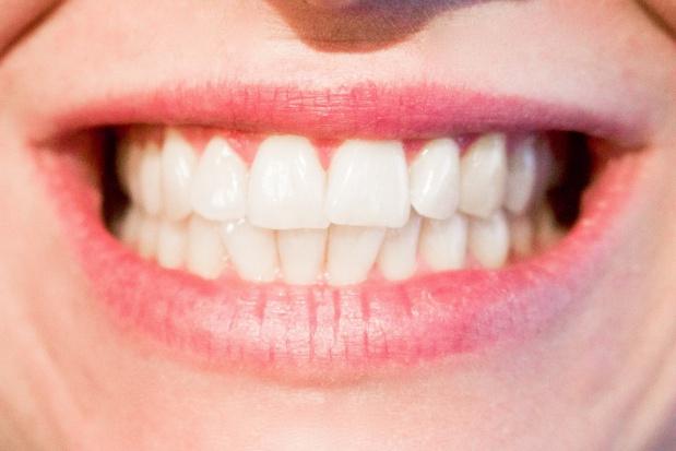 Płyn do płukania ust a związki azotu